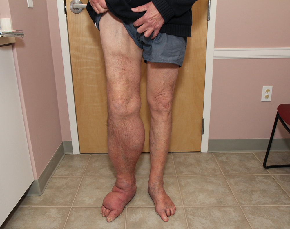 gabapentin hand swelling